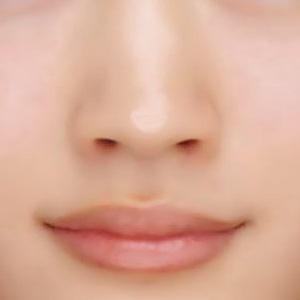 鼻の頭の画像