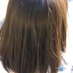 頭皮ニキビはハゲ・抜け毛の原因?痛みやかゆみがあるときの注意点